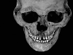 人の頭蓋骨の標本
