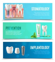 Dental Implants 3 Horizontal Banners Set. Medical oral healthcare 3 horizontal banners set with prevention stomatology and dental implants bookmarks isolated vector illustration