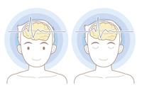 脳波のイメージ01