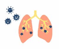 肺炎 肺結核