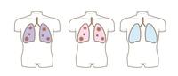 コロナウイルス・肺の断面図