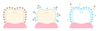 歯 ポリリン酸 ホワイトニング ビフォアアフター