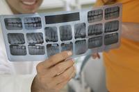 歯科検診のX線(レントゲン)検査