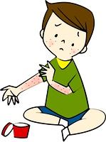 病気、疾患(アトピー性皮膚炎)
