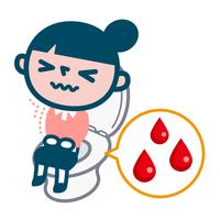 痔で出血した女性