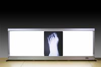 足のレントゲン写真